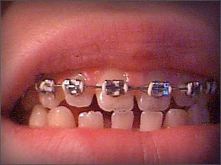 To moje, tak moje, zęby zaraz po założeniu górnego aparatu