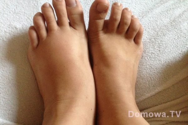 Ups, moja chora stopa, peknięta, stłuczona, nadal nie wiem :(